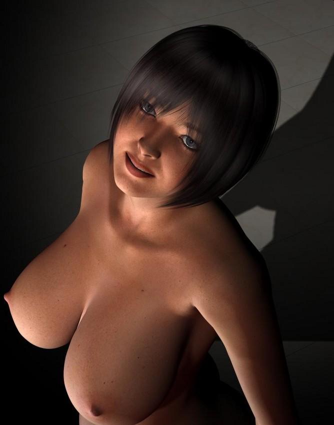 Kerry katona boob reduction
